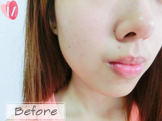 Hiruscar post acne gel review