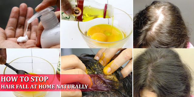 Natural Home Remedies - How To Stop Hair Fall At Home