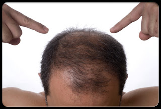 Tips To Stop Hair Falling For Men