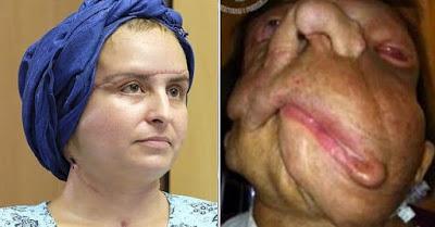 Foto: La asombrosa transformación de una mujer que recibió un trasplante de cara