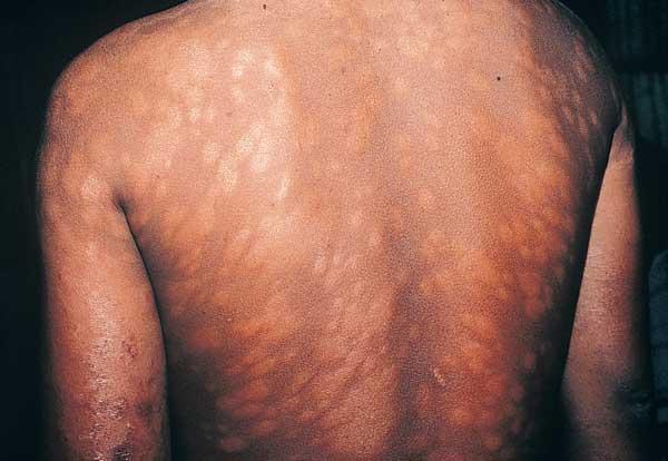 Leprosy Symptoms Of Leprosy
