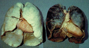 dohányzással kapcsolatos betegségek