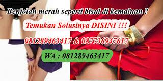 Image Penyebab Bintik – bintik merah gatal di kemaluan wanita