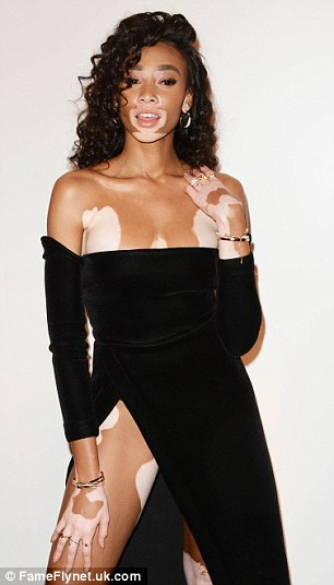 Model with vitiligo Winnie Harlow puts on a leggy show in daring black dress at the Swarovski party.
