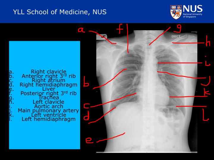 Learning Chest Radiology Chest Radiology Anatomy Correlation