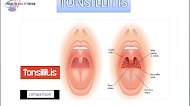 How easy is it to catch tonsillitis?