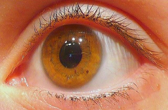 Natural Yellow Eyes Human | www.pixshark.com - Images ...