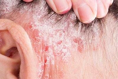 Cara Menghilangkan Psoriasis dengan Lidah Buaya