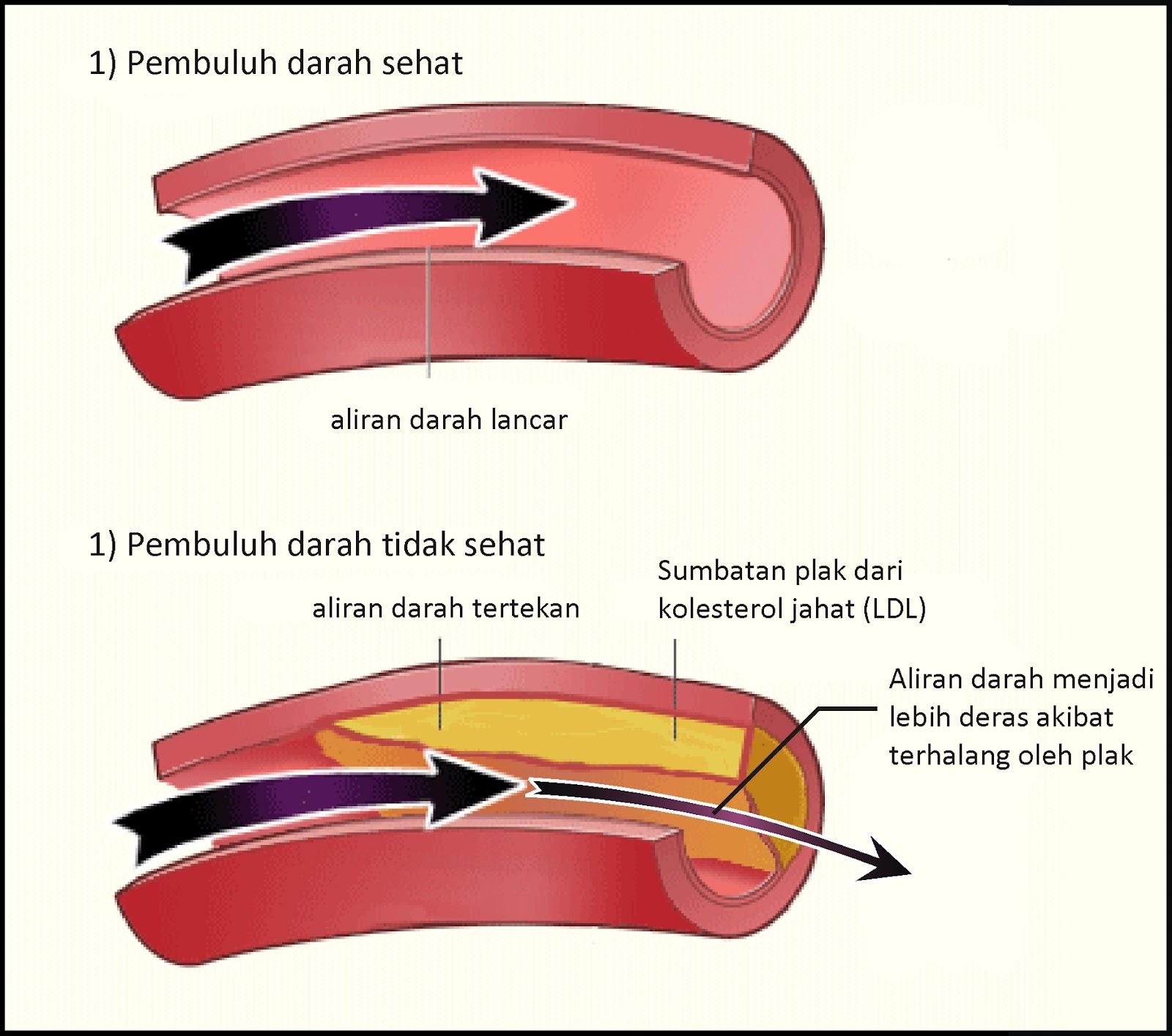 Ilmu & Pelajaran: Tekanan Darah Tinggi