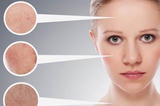 وصفات لعلاج البشره الدهنيه