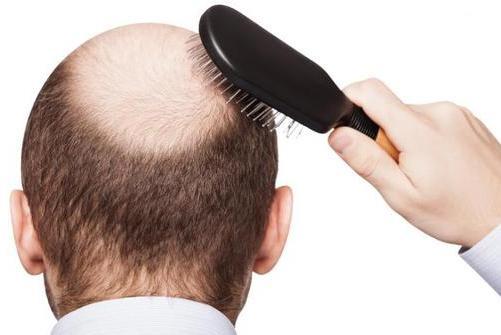 Cara Menumbuhkan Rambut Botak dengan Minyak Zaitun