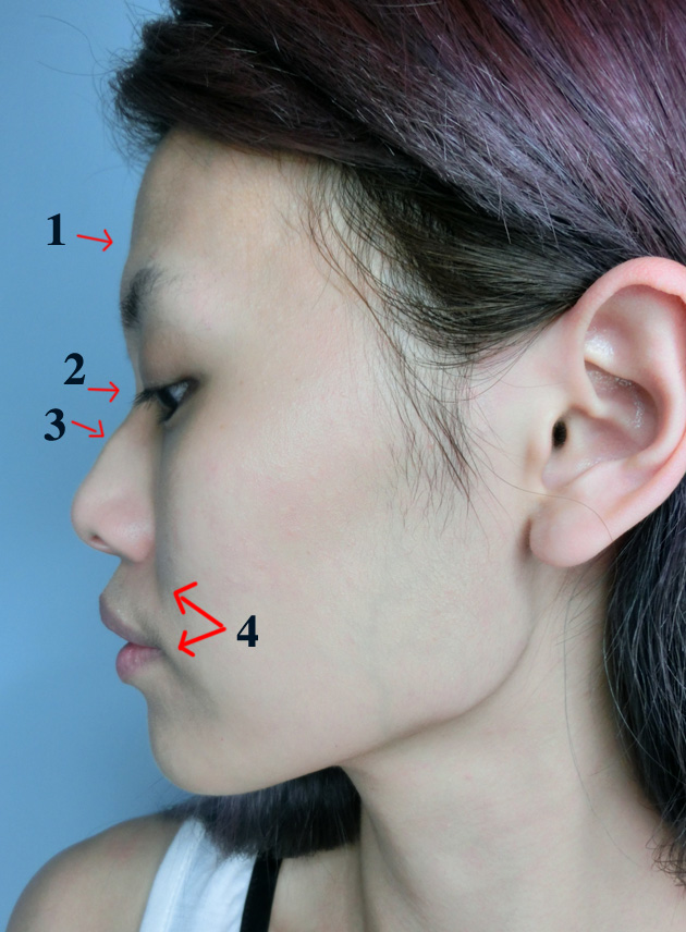 QiuQiu: Seoul far so good (Nose job / Fat grafting Part 1)