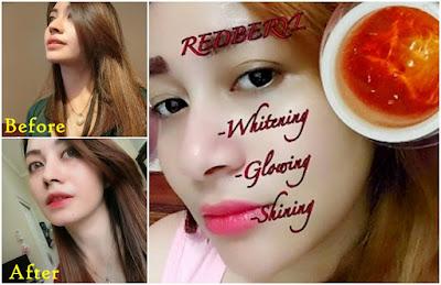 Cream Jelly Redbaryl Whitening Arbutin Racikan Dokter Bikin Wajah Glowing