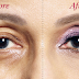 Eliminate The Drooping Eyelid Naturally With the Help of This Remedy: It's Wonderful!