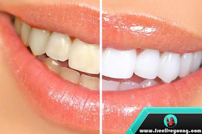 How To Whiten Teeth
