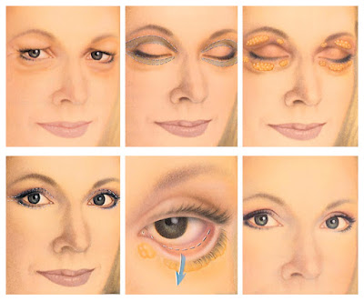 eyelid surgery cost