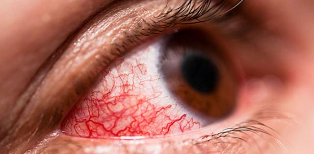 Κοκκίνισμα ματιών: Που μπορεί να οφείλεται