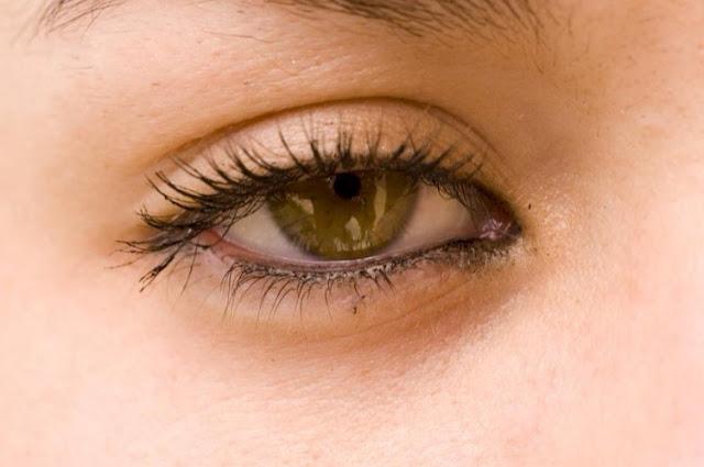 طريقة فعالة لعلاج الهالات السوداء حول العينين بالكركم 1
