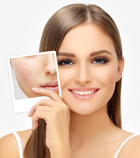 Can Do Facial When Facial Acne?