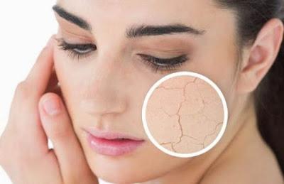 menghilangkan kulit kering dengan bahan alami