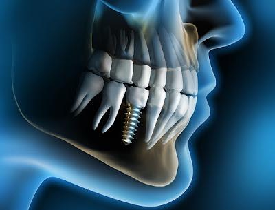 Mất răng hàm số 6 – Khắc phục hiệu quả bằng cấy ghép implant