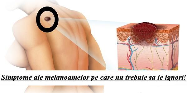 este foarte important ca melanoamele sa fie depistate si diagnosticate corect in stadiile incipiente