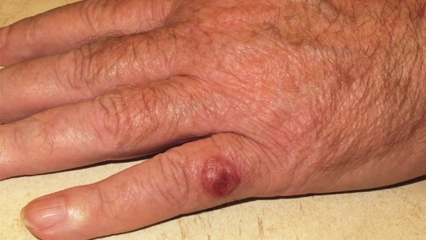 Cancer de piel posibilidades de curacion