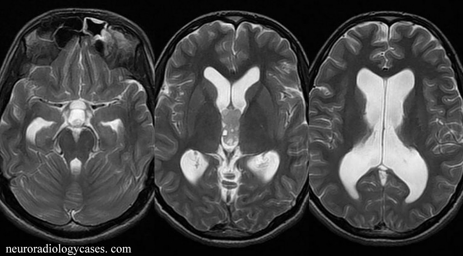 Dr Balaji Anvekar's Neuroradiology Cases: CSF shunt imaging