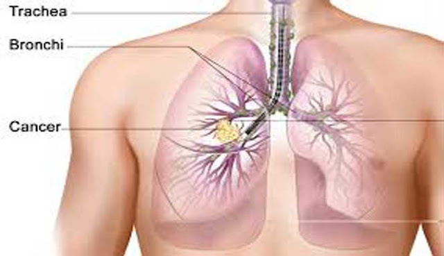 yakni penyebab selesai hidup nomor dua di dunia sesudah penyakit jantung 10 JENIS KANKER PALING MEMATIKAN DI DUNIA