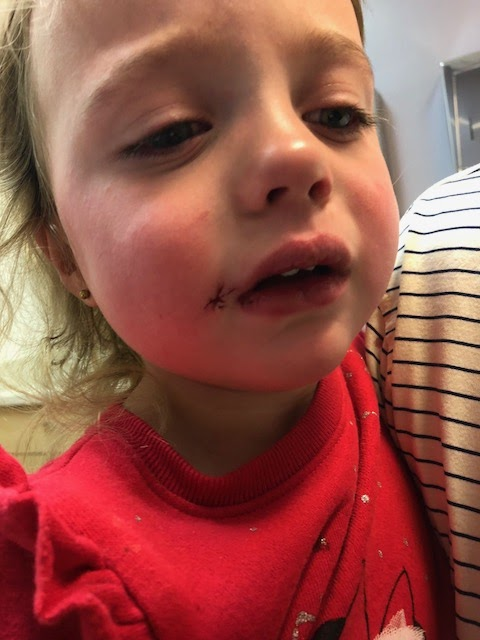 children's fall and facial wound