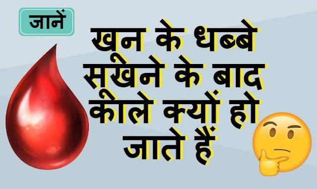 खून के धब्बे सूखने के बाद काले क्यों हो जाते हैं - Why does the color of blood become black after drying