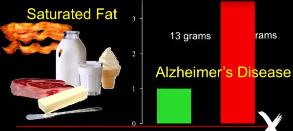 飽和脂肪酸 アルツハイマー病