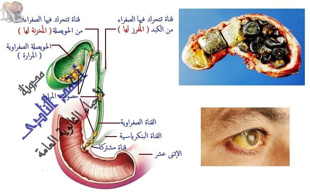 التغذية فى الكائنات غير ذاتية - الجهاز الهضمى فى الإنسان - الهضم فى الأمعاء - المرارة -مستحلب دهنى -  الحصوات - إستئصال المرارة - الحويصلة الصفراوية - العصارة الصفراوية - أحياء الثانوية العامة - مدونة أحمد الناد