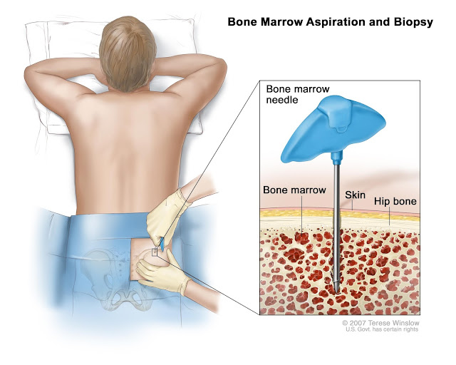 What a Bone Marrow Transplant is All About?