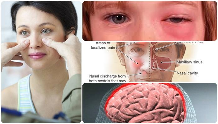 cara-mengobati-sinusitis
