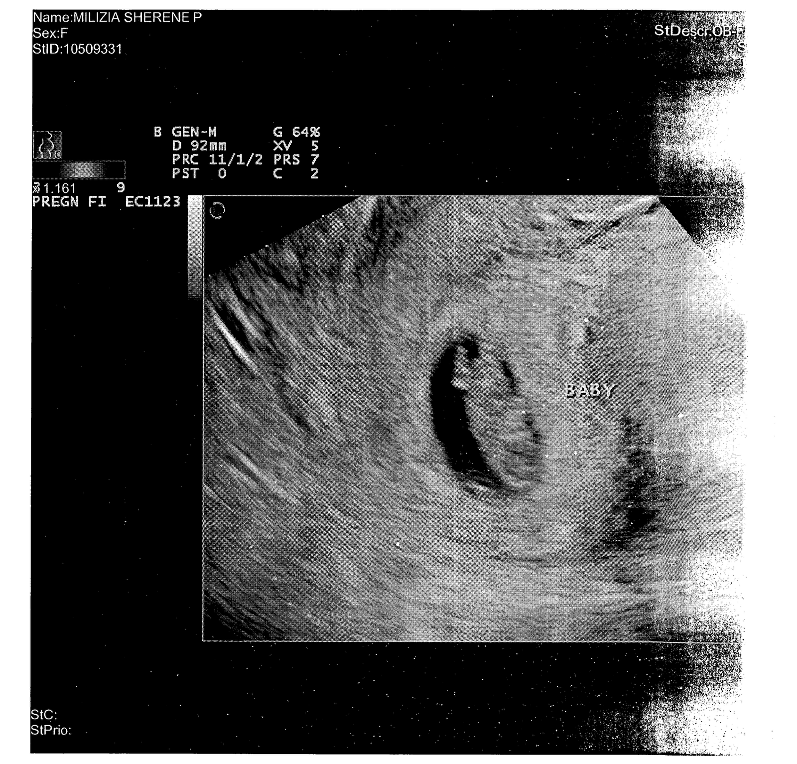 Baby Ultrasound When Is The First Baby Ultrasound