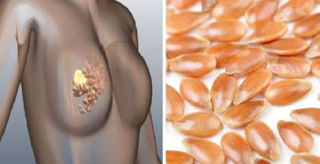 Breast Cancer   -  Prevent and Cure