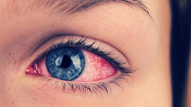 Cara Mengobati Radang Mata