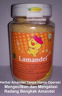 """Jual obat amandel """"LAMANDEL"""" herbal bagi anak/dewasa tanpa operasi"""