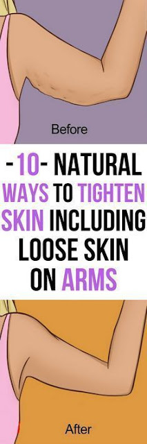 10 Natural Ways To Tighten Skin, Including Loose Skin On Arms