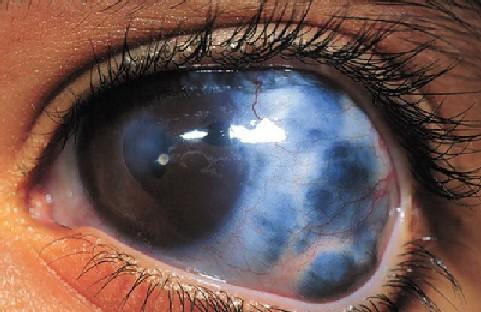 Ciri-Ciri Orang yang Terkena Penyakit Mata Glaukoma