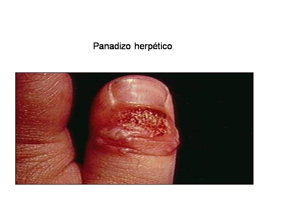 Herpes zoster on penis