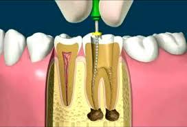 utilizacion de una lima de endodoncia