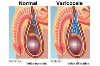 Penyakit Varikokel