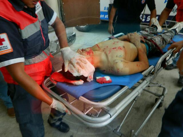Joven baleado muere en el Hospital