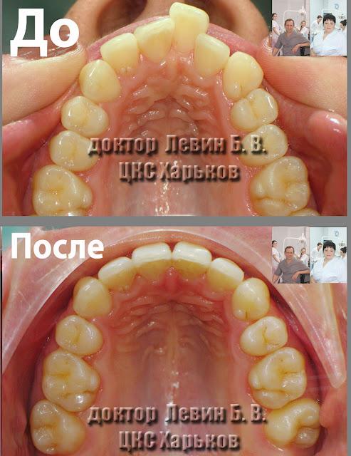 Два фото зубного ряда до и после лечения брекетами