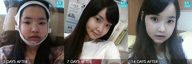 3 hari, 7 hari, 14 hari sesudah operasi dua rahang di Wonjin
