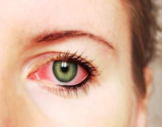 Tips Ampuh Mengobati Sakit Mata Secara Tradisonal