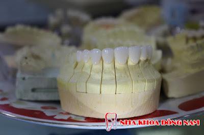 bọc răng sứ làm như thế nào