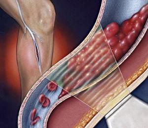 Cara Mengatasi Penyakit Pembekuan Darah